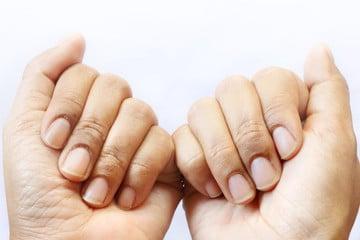 Es importante prestarle atención a los hongos en las uñas